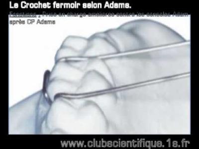 Le crochet adams, ces fonctions et ces variations en orthodontie.